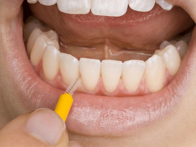 Szczoteczki międzyzębowe – instruktaż